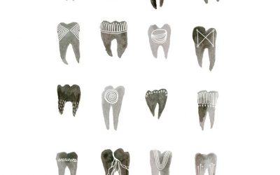 Лечителското изкуство на инките при зъбобол