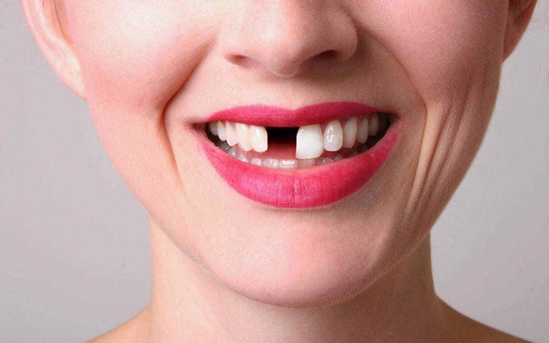 Какви промени настъпват в зъбната редица след загуба на зъб?