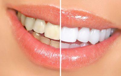 Какво представлява процедурата избелване на зъбите?