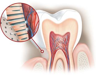 Какви продукти за орална хигиена да използваме при чувствителни зъби?