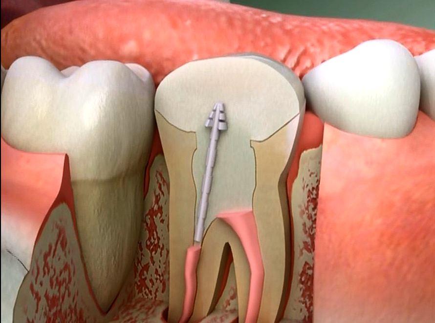 Избелване на ендодонтски лекувани зъби (умъртвени зъби)