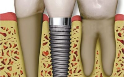 Колко време издържат денталните импланти?