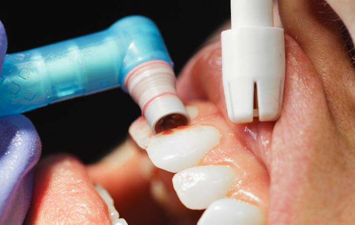 Полиране на зъби