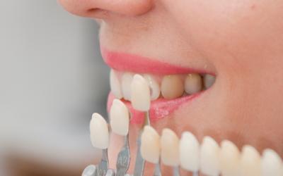 Каква е разликата между козметична и естетична стоматология?