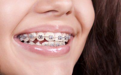 Чистене на зъбен камък при пациенти на ортодонтско лечение