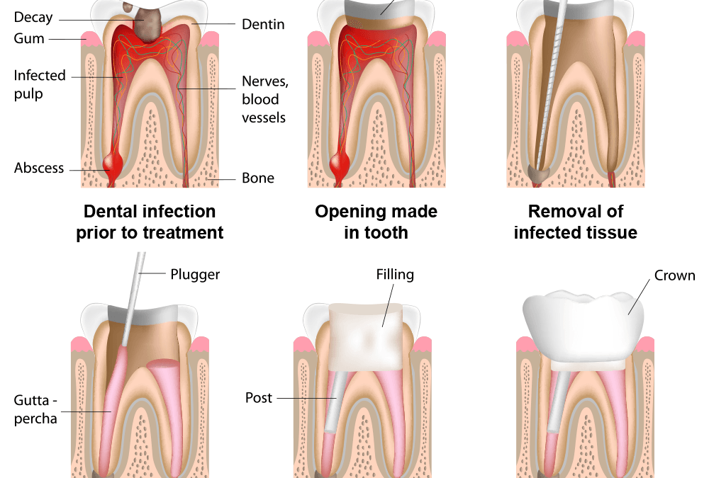 Защо умъртвените зъби трябва да бъдат облечени в корони?